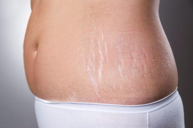Get Rid Of Stretch Marks For A Flawless Summer Body