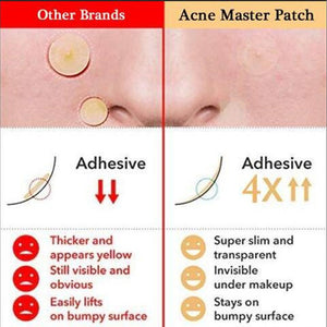 Skin Tag & Acne Patch Blackhead Remover Treatment Mask Black Pimple Skin Patch 36PCS - Center Of Treasures