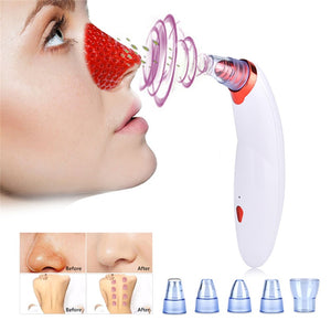 Body Cupping Blackhead Remove Vacuum Suction Face Clean Pore Vacuum Acne Pimple Removal Facial Diamond Dermabrasion Tool Machine - Center Of Treasures