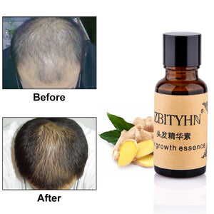 Hair Growth Essence Anti Hair Loss Liquid Dense Dropshipping Discounted Price Hair Hairstyle Keratin Hair Care Products Sunburst - Center Of Treasures