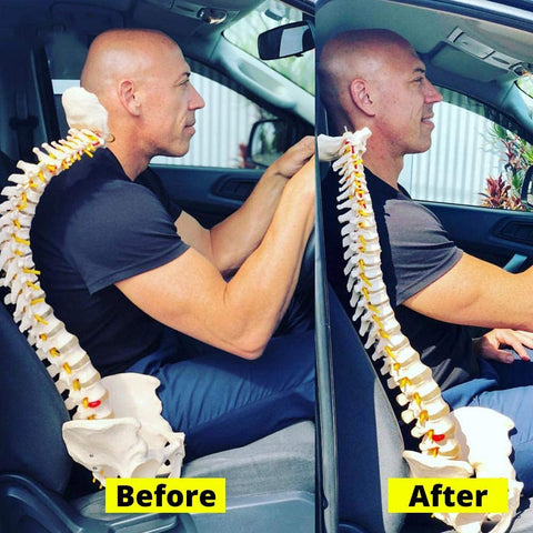 neck correct before after cervical traction pain relief