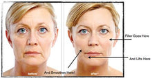 Dermal Fillers - MD Codes 8 Point lift