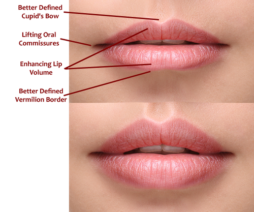 Dermal Fillers - Lip Augmentation