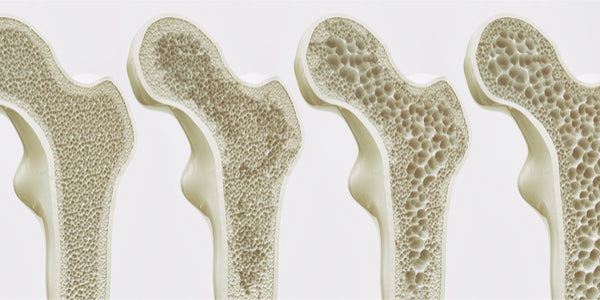 Ostarine and Osteoporosis