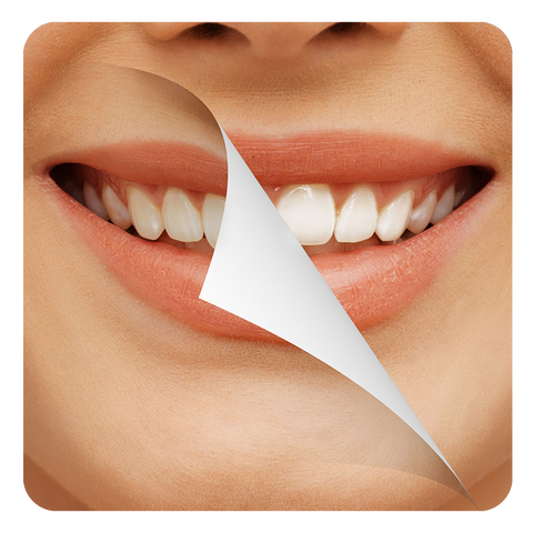 Teeth Whitening at home | Getting Whiter Teeth Through At Home Dental Care