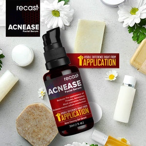 Acnease Facial Serum - Acne Clearing Serum - Extremely effective on Acne, Blemishes, Acne Scars, White heads and Black heads - Visible difference right from 1st application