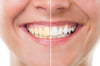 Teeth whitening at home | New Smile Club Canada | Smilelove Canada | Invisalign alternative and be candid