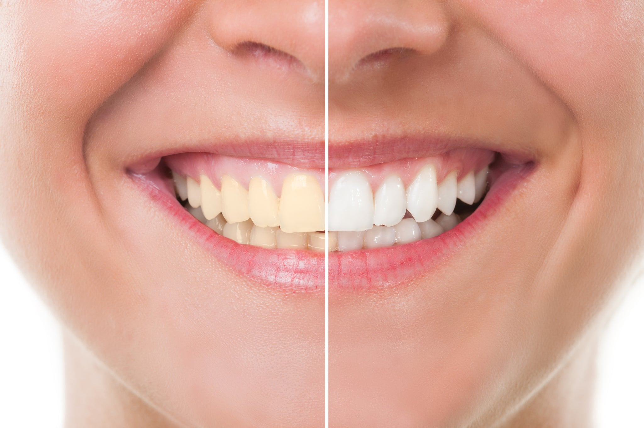 Teeth Whitening Tips You Can Try At Home Smilelove Canada