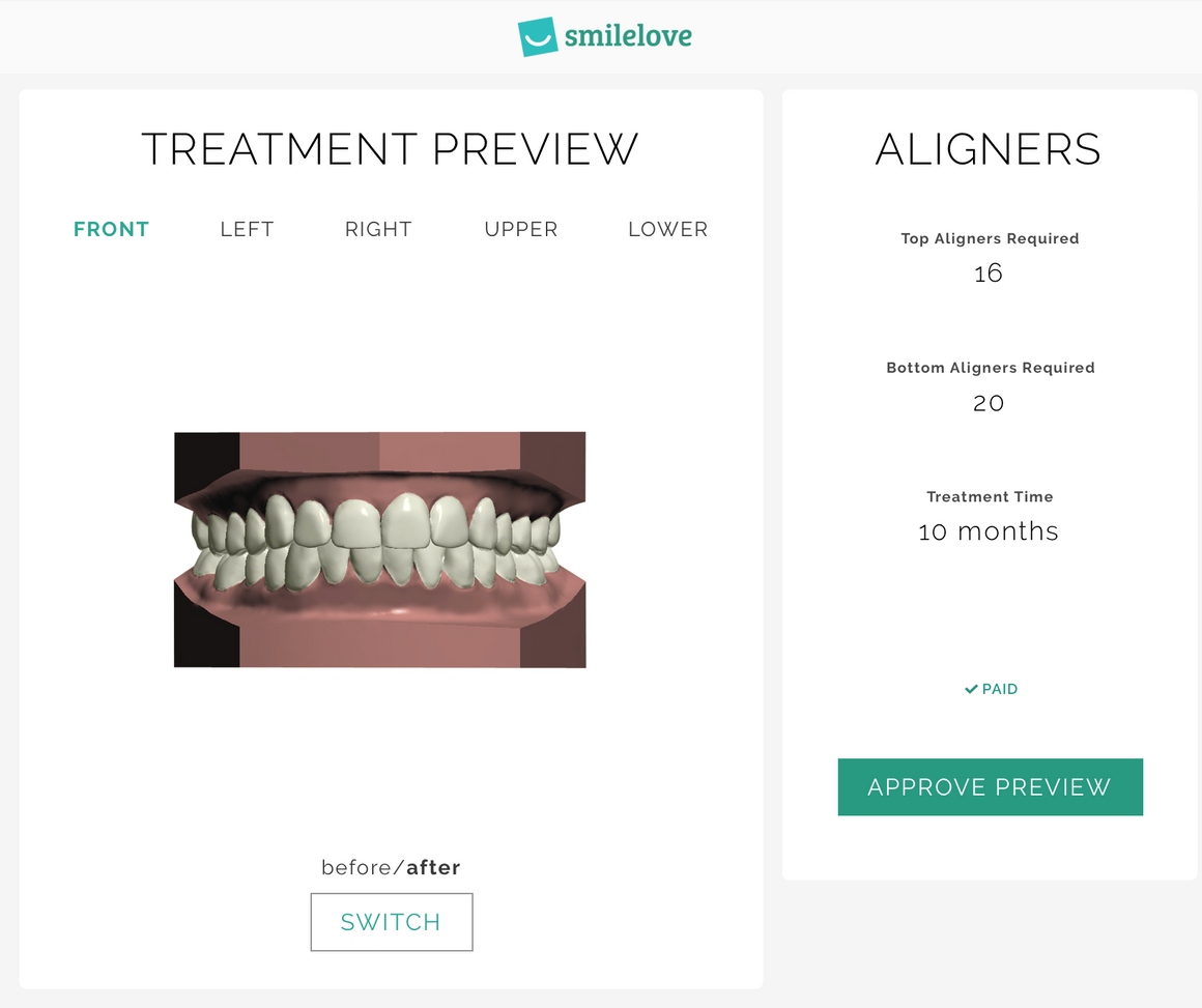 3D Treatment Preview | Smilelove Canada
