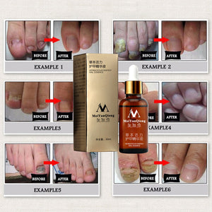 Fungal Nail Treatment Essence