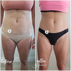 Cryoskin and infrared treatments for fat loss at Skin Clinic Med Spa and Haven Co. Riverside California
