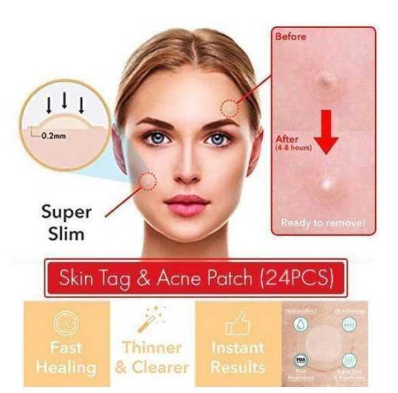 SKIN TAG & ACNE PATCH ( 24 PCS ) - HiSheep