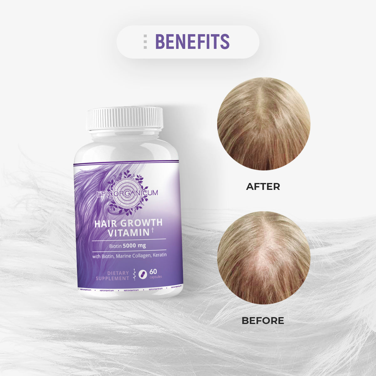 EpicOrganic Hair Growth Vitamins With Biotin. Supplement For Women & Men. Faster Hair Growth, Reduced Hair Loss