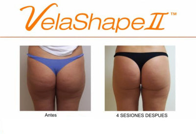 Velashape-The House of Beauty Iceland