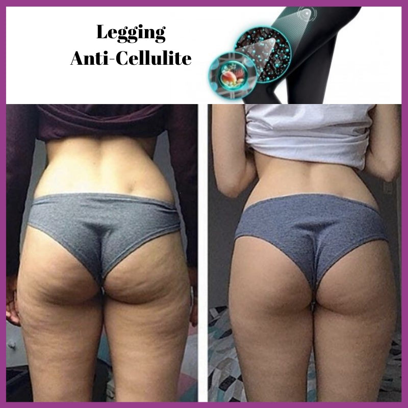 Legging Anti Cellulite Push-Up LISSÉA™ - MY FEERIE