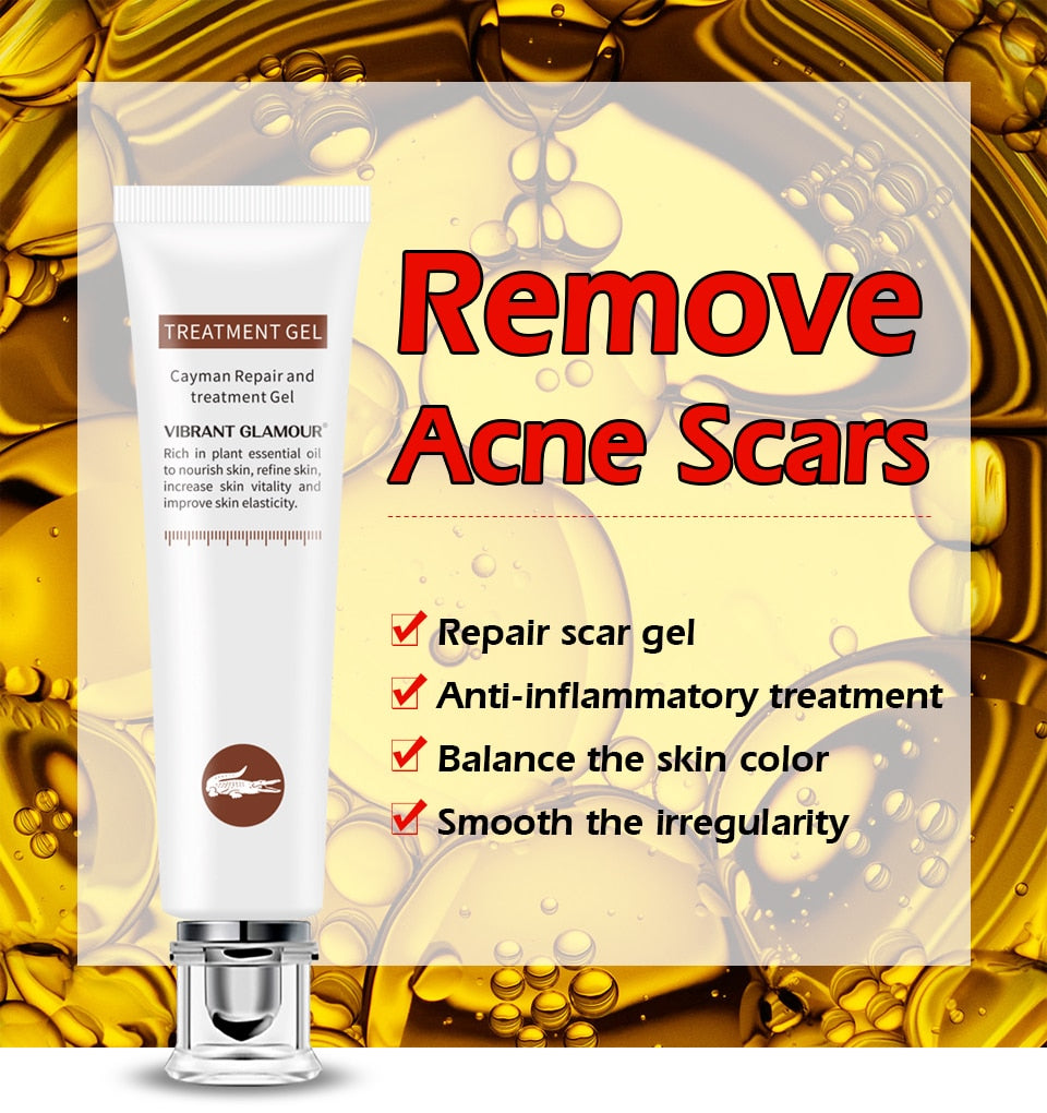 Repair Scar cream Removal Acne Scars gel Stretch Marks Surgical scar Burn  For Body Pigmentation