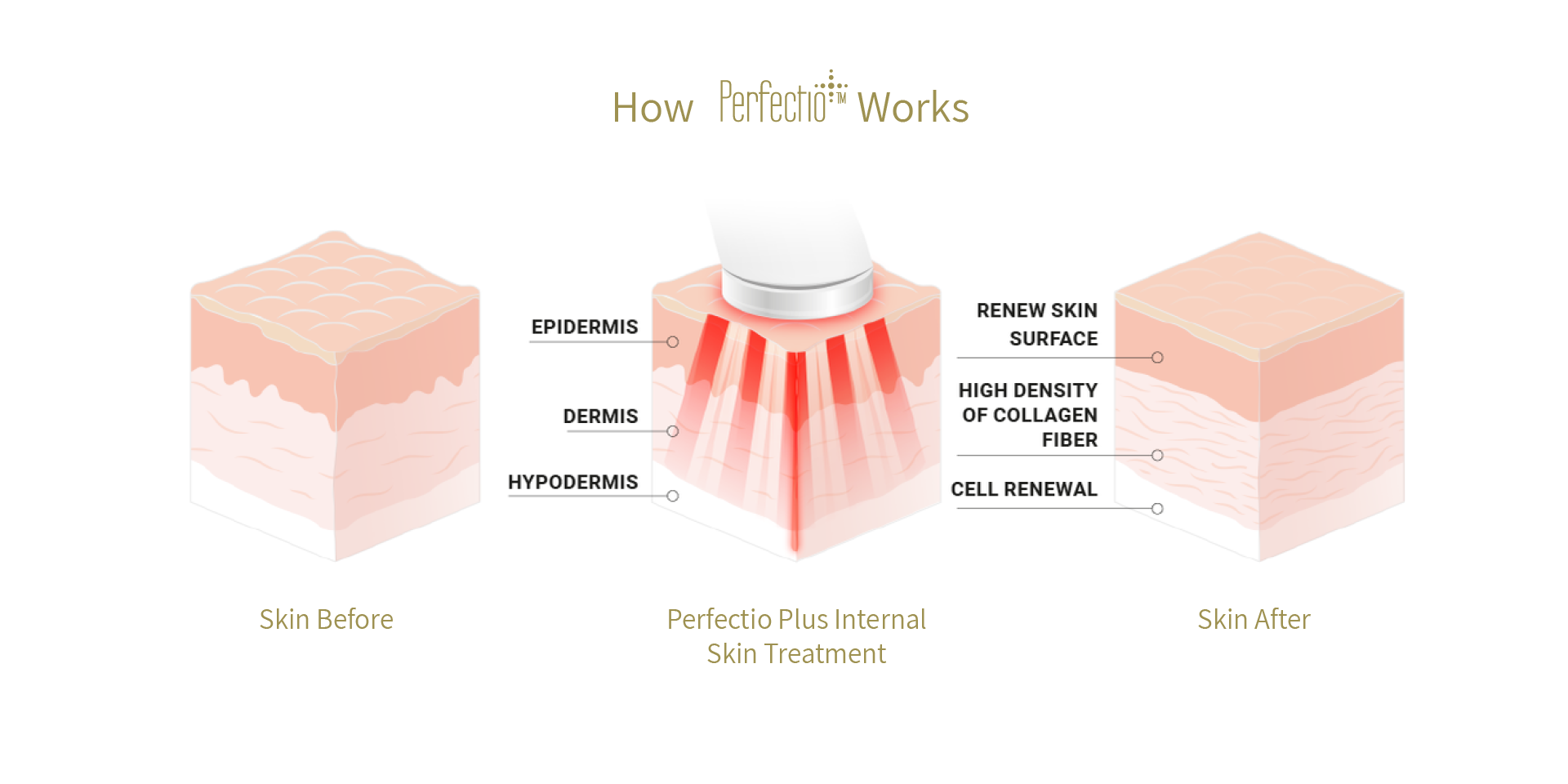 How Pefectio Plus Works