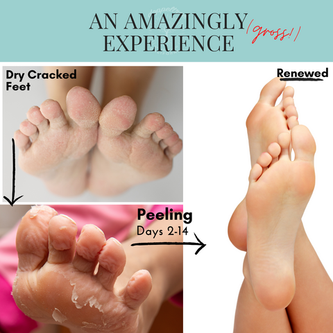 doppeltree foot peel mask an amazingly gross experience
