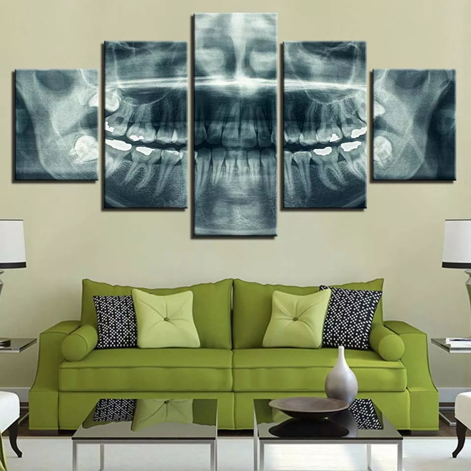 Dental X-ray - 5 Panel Canvas Art Set - Dental Desire.com