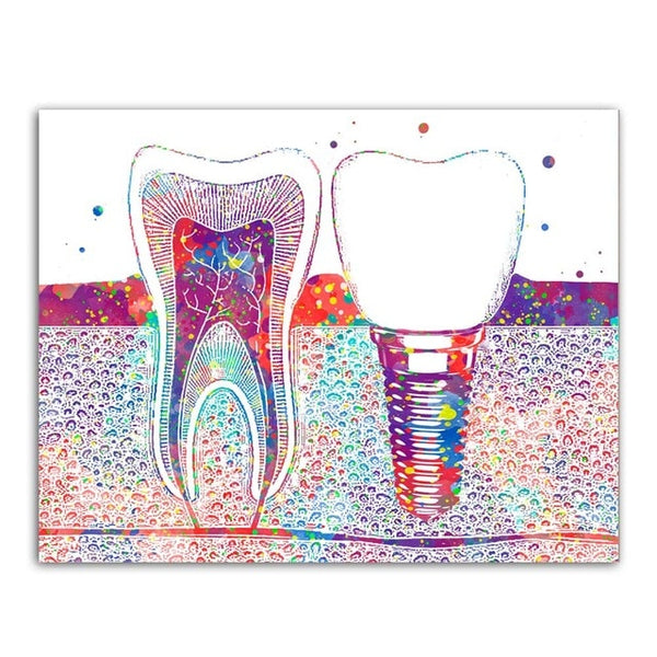 Watercolor Painting of Colorful Complete Dentition And Implant - Dental Desire.com