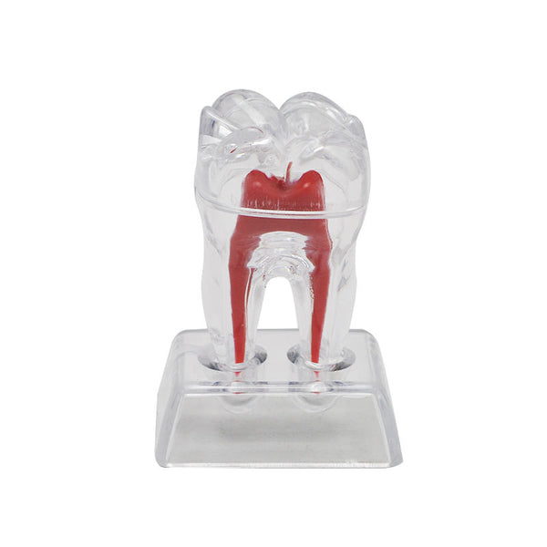 Dental Crystal Base Hard Plastic Tooth Molar Model (Separable) - Dental Desire.com