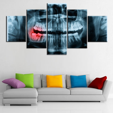 Dental X-ray Painful Teeth - 5 Panel Canvas Art Set - Dental Desire.com