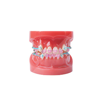 Ortho Ceramic Bracket Dental Orthodontic Model with Metal and Ceramic Brackets  Study model - Dental Desire.com