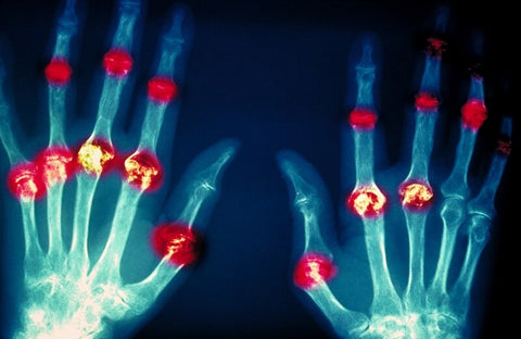 arthritis in the fingers