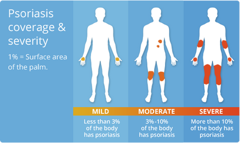 Psoriasis Coverage Severity