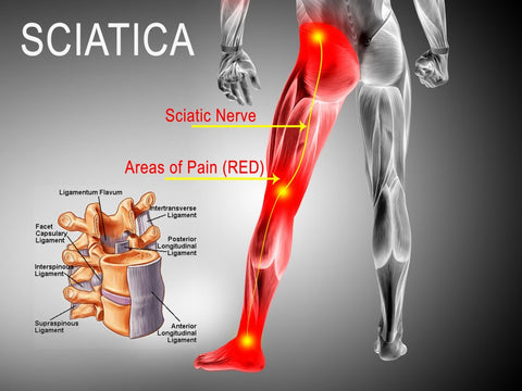 sciatica pain care