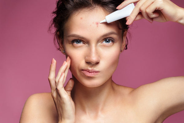 Diagnosing Your Acne and How To Treat It