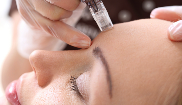 Mesotherapy: The Secret to Plump, Youthful Skin
