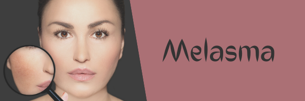 Treatments for Melasma