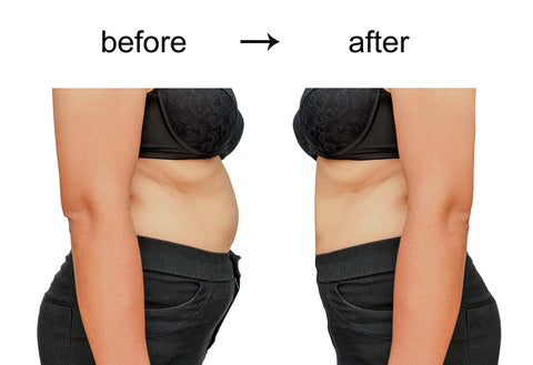 Body contouring Hifu treatment before and after