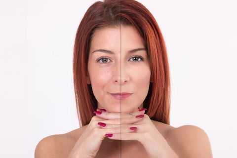 hifu treatment before and after photo of woman
