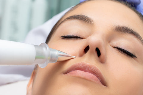 woman receiving fibroblast plasma treatment