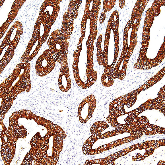 Cytokeratin 19 Antibody - Clover Biosciences, LLC
