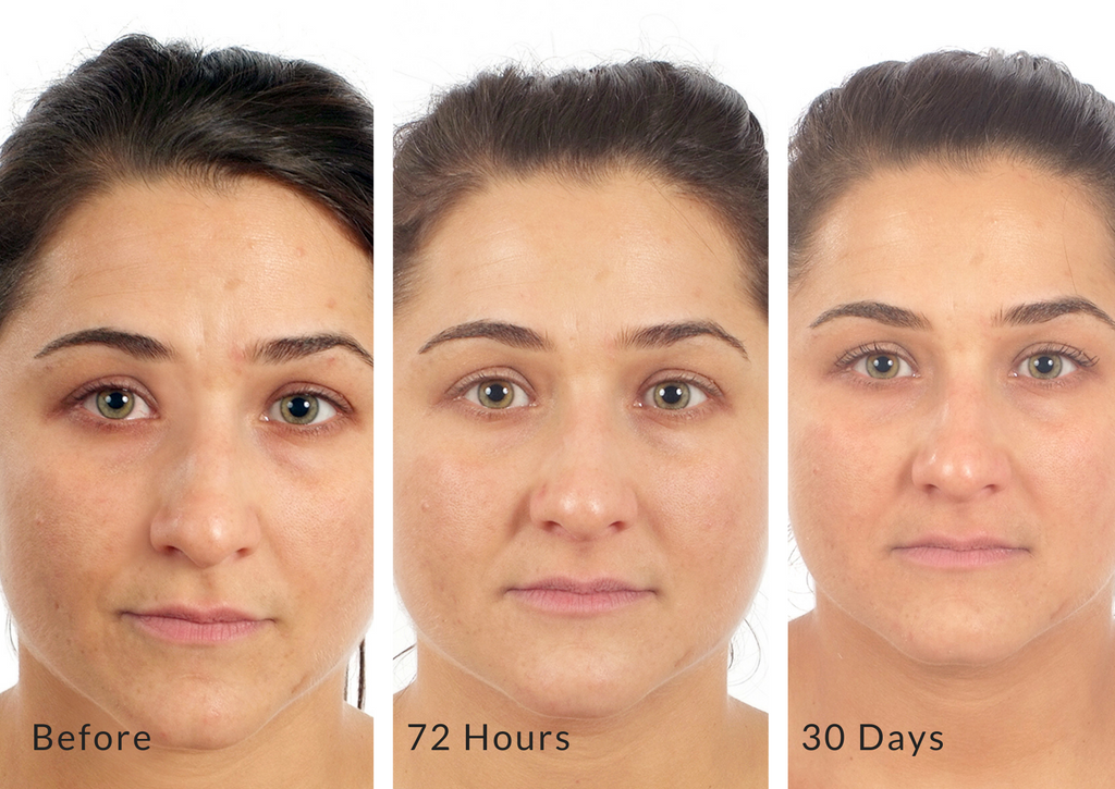 Dramatic Transformation Cream SPF 18 Before & After