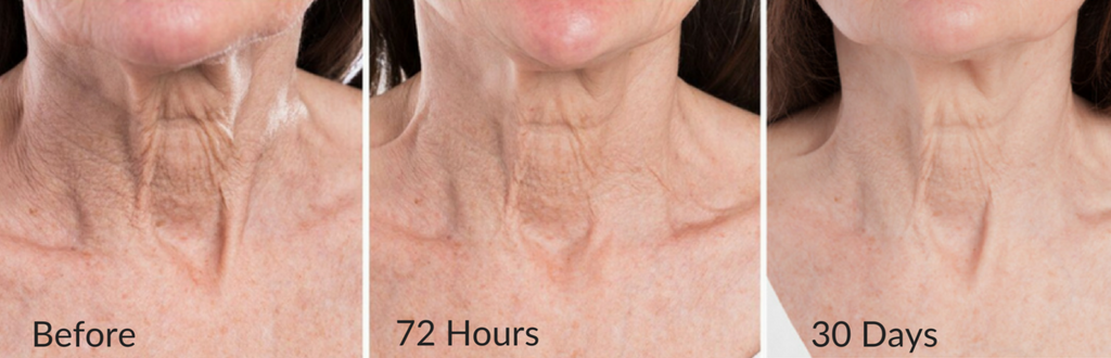Smoothing Neck Serum Before & After - Smoothed neck wrinkles, tighten neck skin, crepiness diminished, brighten age spots dark spots on décolleté, no tech neck, no turkey neck