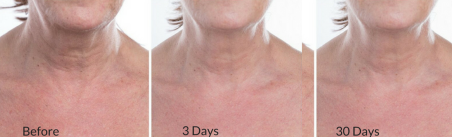 Smoothing Neck Serum Before & After 2 - Smoothed neck wrinkles, tighten neck skin, crepiness diminished, brighten age spots dark spots on décolleté