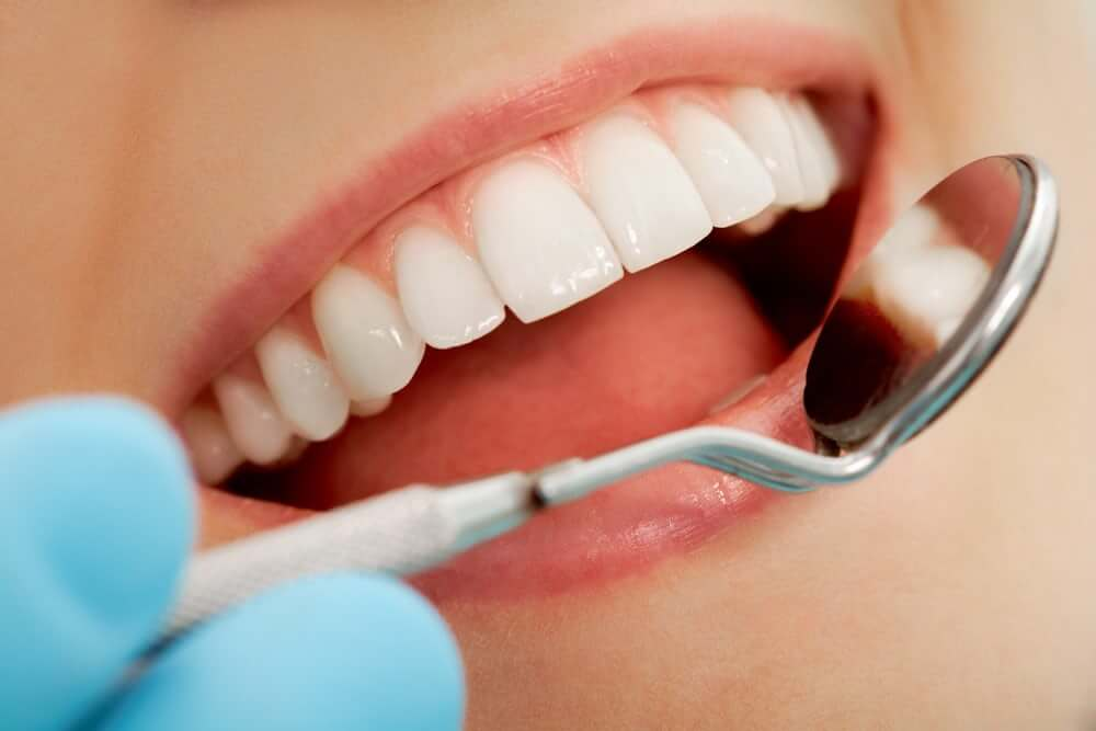 Immune cells may play a role in causing cavities