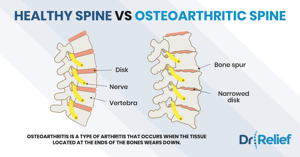 healthy-spine-osteoarthritis-comparison-back-pain-relief
