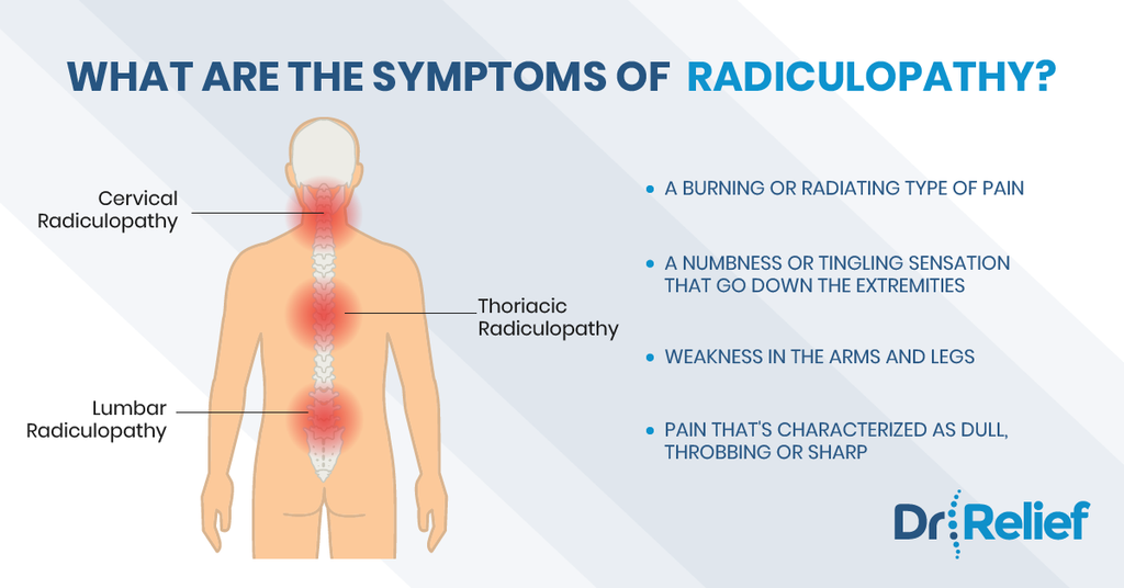 radiculitis-radiculpathy-back-pain-relief