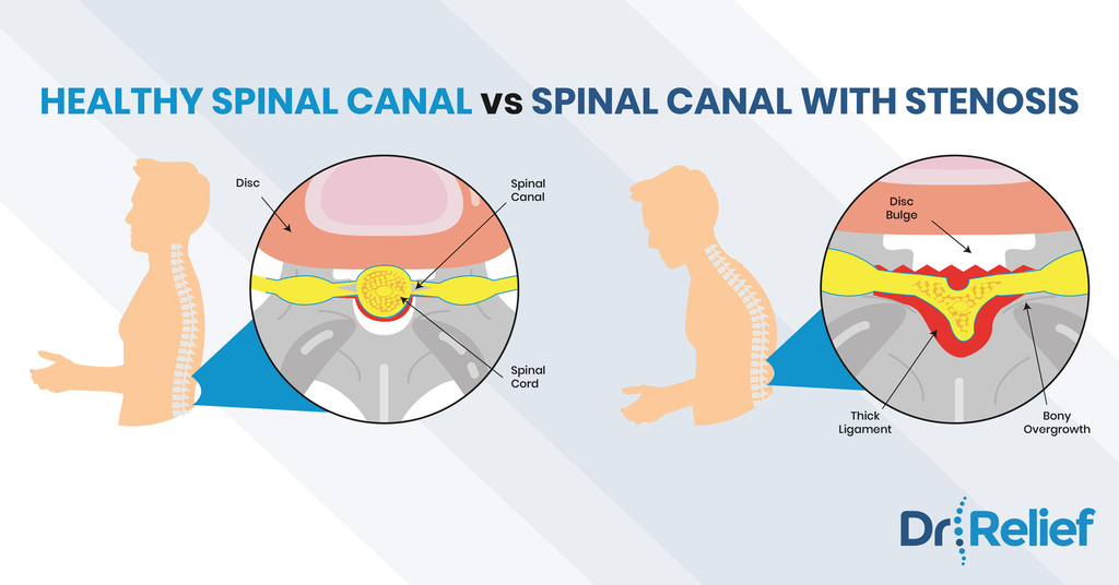 spinal-canal-stenosis-back-pain-relief