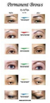 before-after-eyebrow-poster