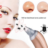 Blackhead Blemish and Acne Pore Vacuum Extraction Tool
