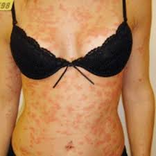 What is psoriasis and what can cause its appearance.