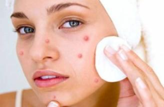 What is acne and how does it affect us