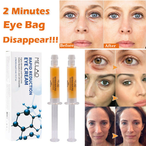 cream to remove eye bags in 2 minutes