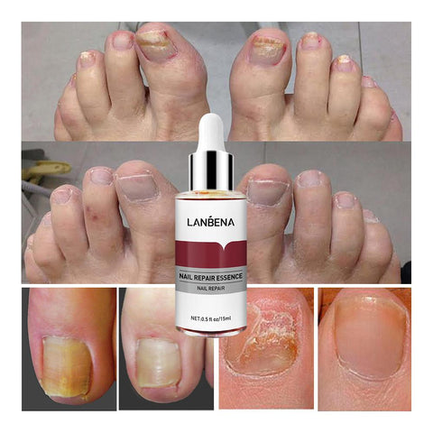Lanbena nail repair treatment